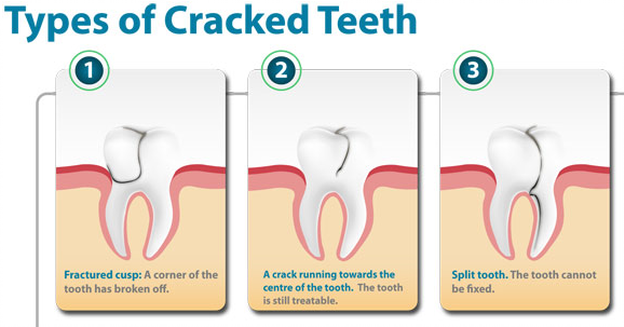 types-cracked-teeth